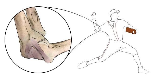 Pitcher's elbow